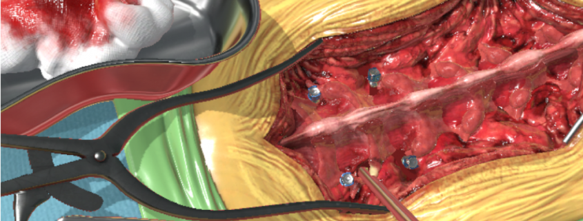 FUNDAMENTAL SURGERY EXPANDS EDUCATIONAL SURGICAL SIMULATION PLATFORM WITH NEW FACETECTOMY PROCEDURE AND FUNDAMENTAL SURGERY SCORE
