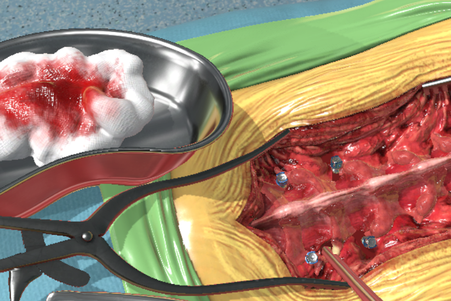 Fundamental Surgery Expands Educational Surgical Simulation Platform with New Facetectomy Procedure